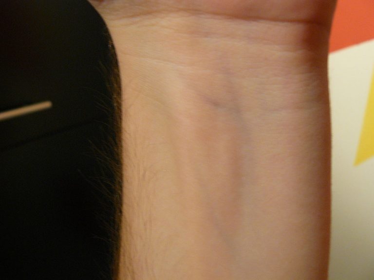 why do veins look blue
